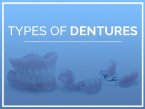 Types of Dentures