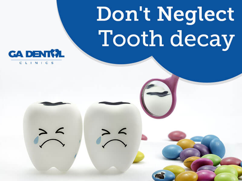 Treatments for Tooth Decay