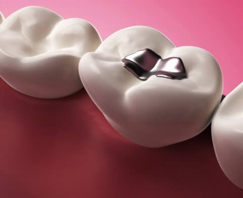 Treating Tooth Decay