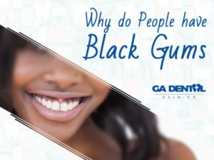 Causes of Black Gums