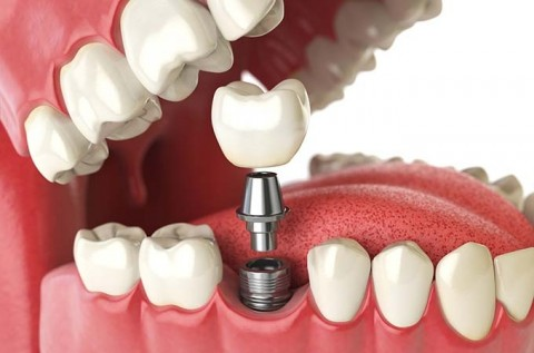 Natural are Dental Implants