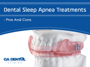Sleep Apnea Treatments: Need To Know