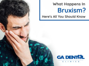 What Happens In Bruxism? Here's All You Should Know